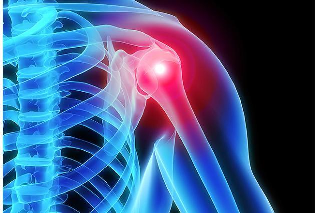 Foto 6 - Neoprenová bandáž ramene